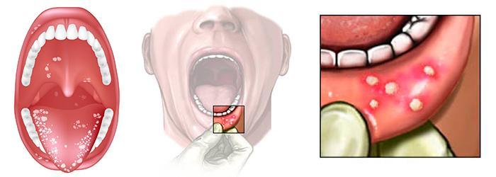 Острый стоматит и методы борьбы с ним